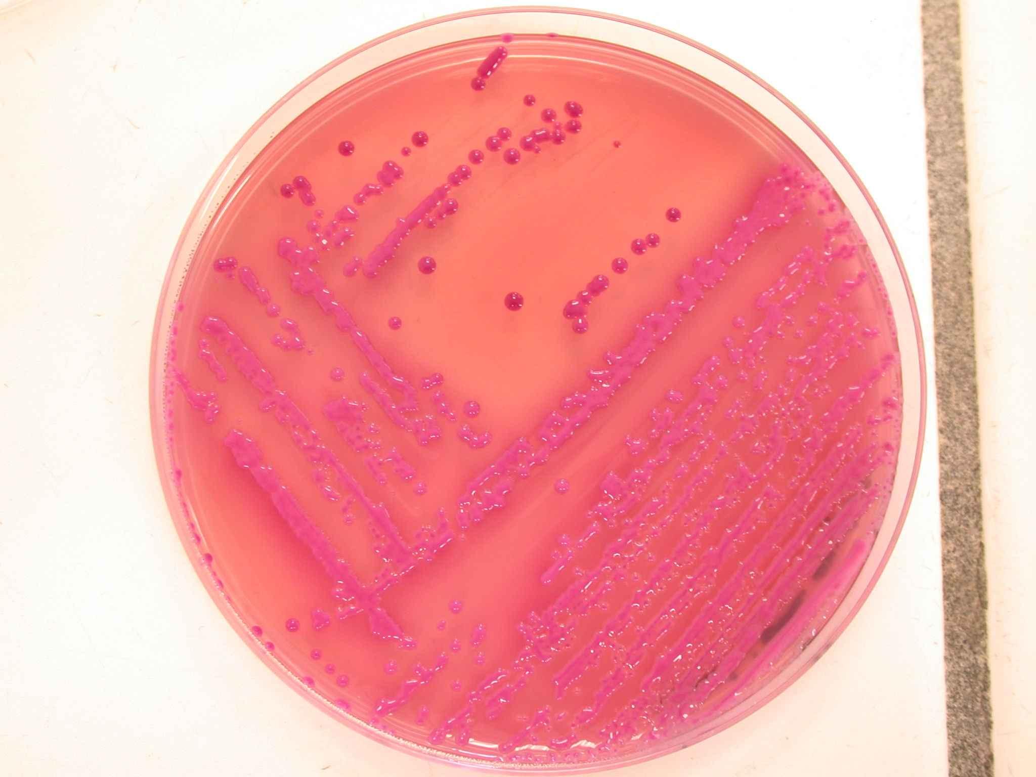 Клебсиелла окситока у беременных 11